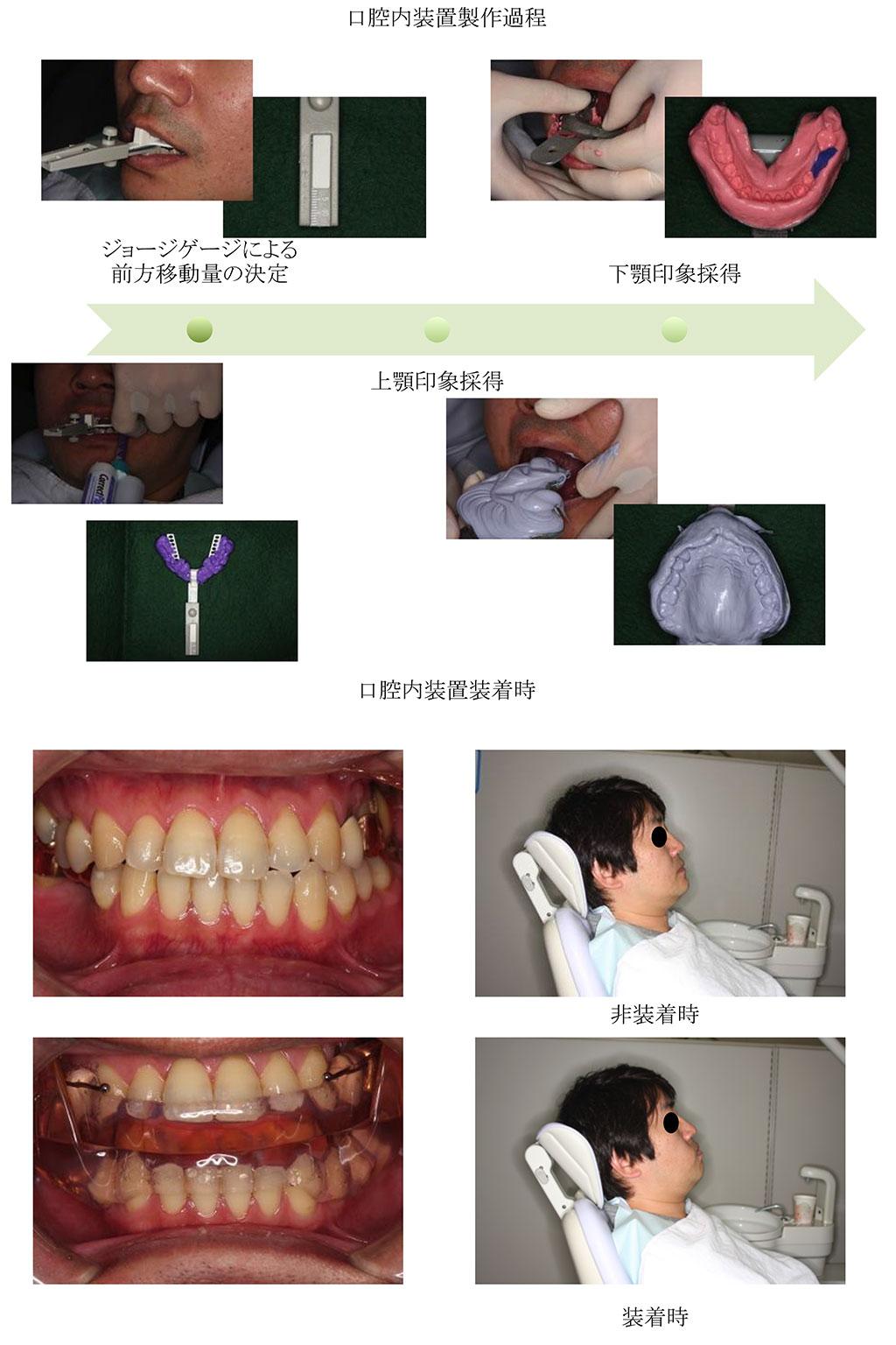 睡眠時無呼吸症候群口腔内装置